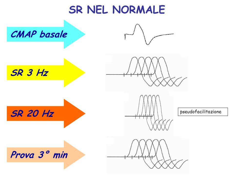 SR NEL NORMALE CMAP basale SR 3 Hz SR 20 Hz Prova 3° min