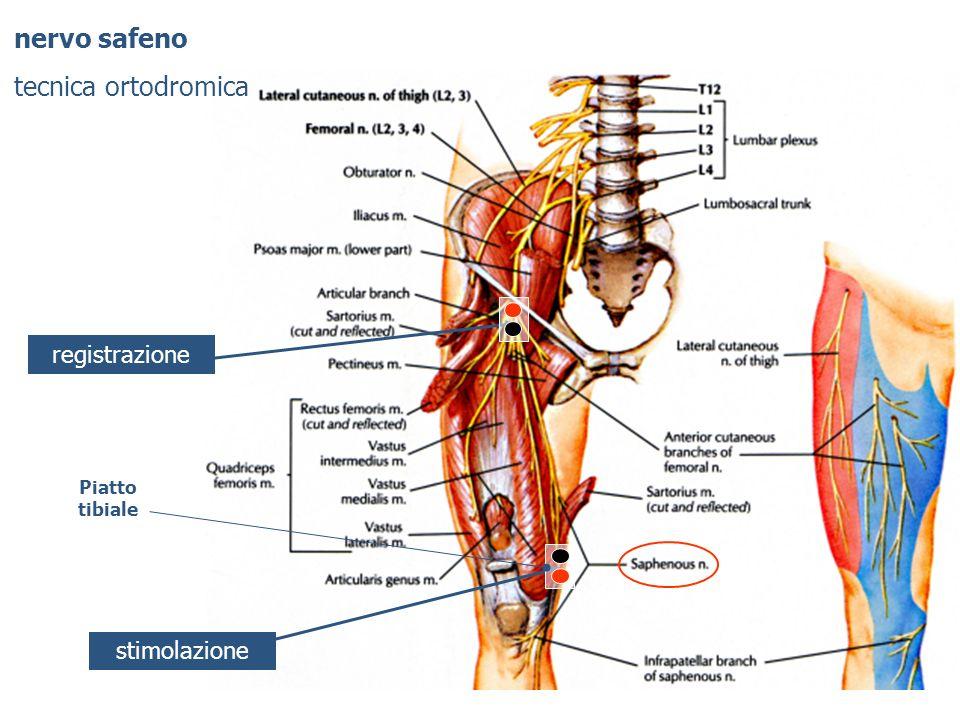nervo safeno tecnica ortodromica registrazione stimolazione