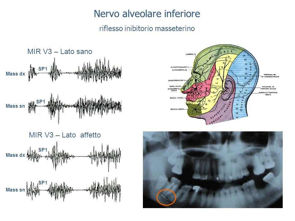 Nervo alveolare inferiore