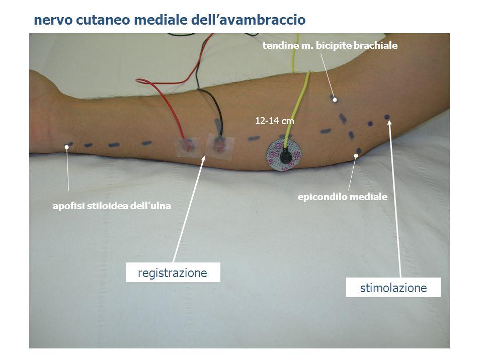 tendine m. bicipite brachiale apofisi stiloidea dell'ulna