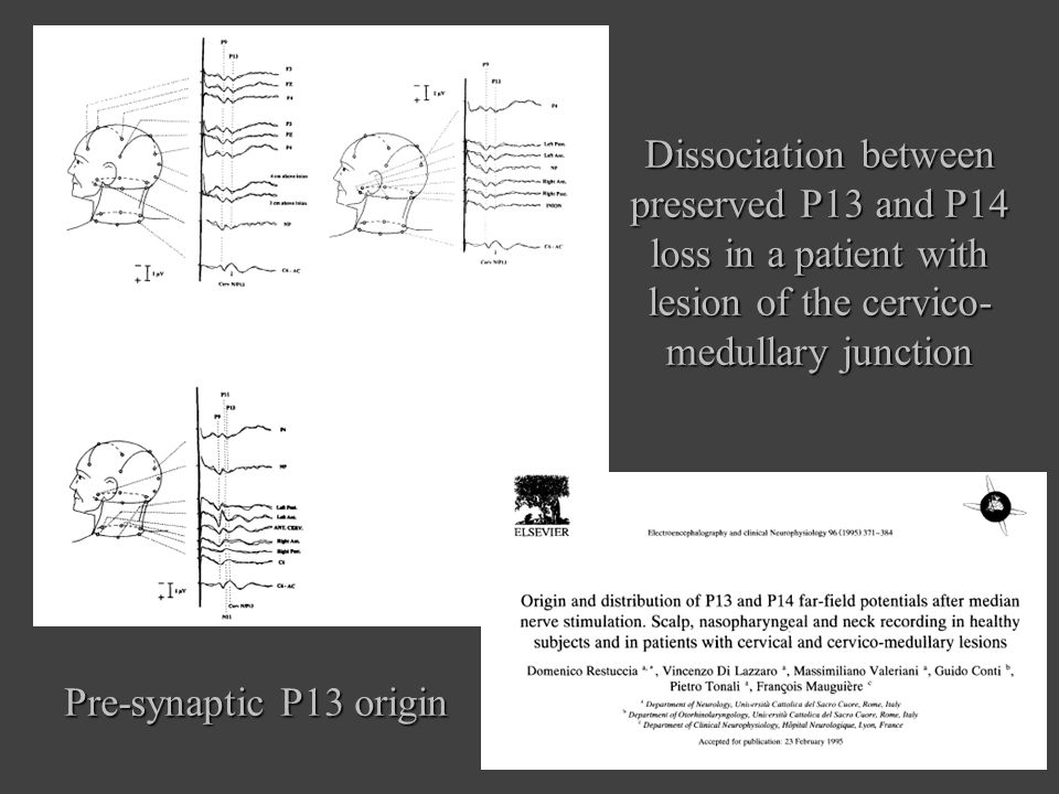 Dissociation between preserved P13 and P14 loss in a patient with lesion of the cervico-medullary junction