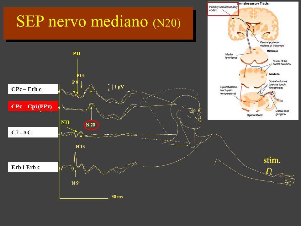 SEP nervo mediano (N20) CPc – Erb c CPc – Cpi (FPz) C7 - AC