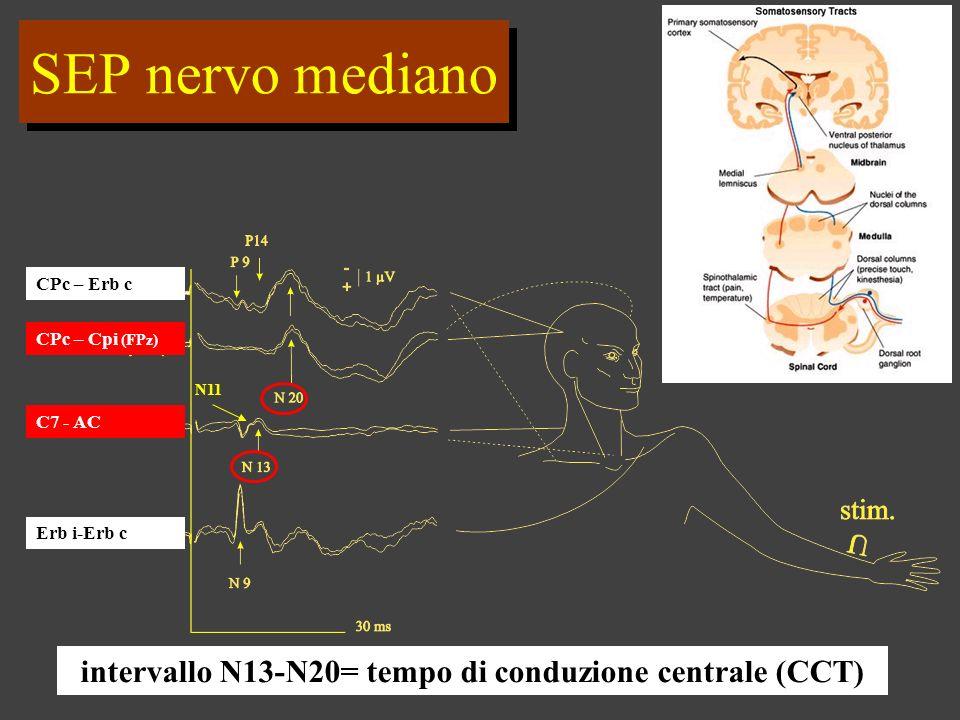 intervallo N13-N20= tempo di conduzione centrale (CCT)