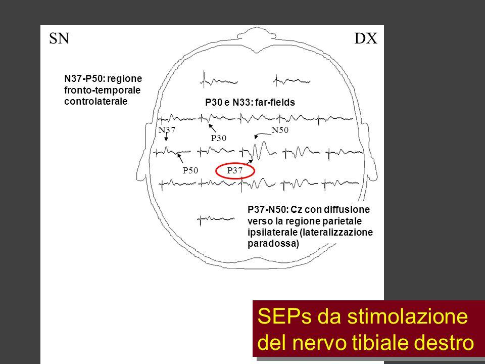 SEPs da stimolazione del nervo tibiale destro