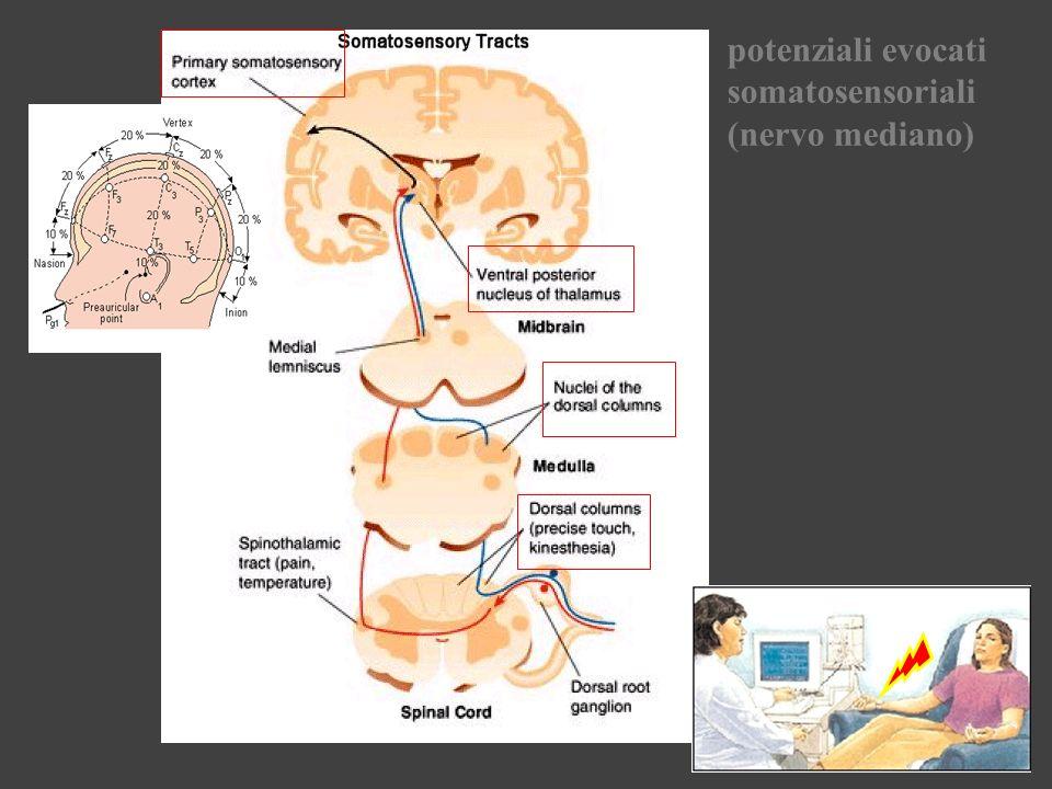 potenziali evocati somatosensoriali (nervo mediano)