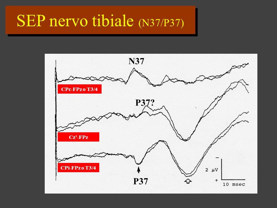 SEP nervo tibiale (N37/P37)