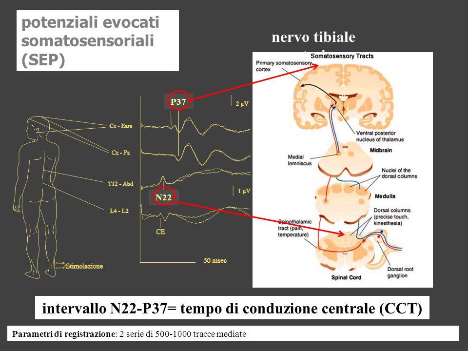 potenziali evocati somatosensoriali (SEP) nervo tibiale posteriore
