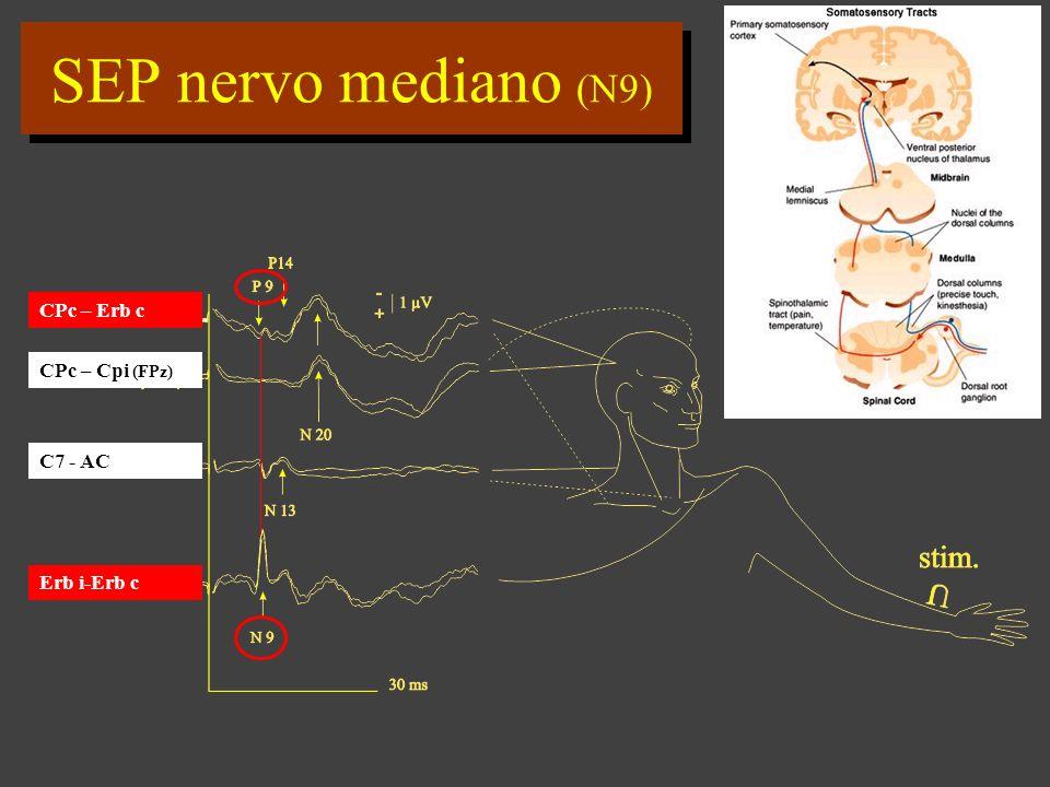 SEP nervo mediano (N9) CPc – Erb c CPc – Cpi (FPz) C7 - AC Erb i-Erb c