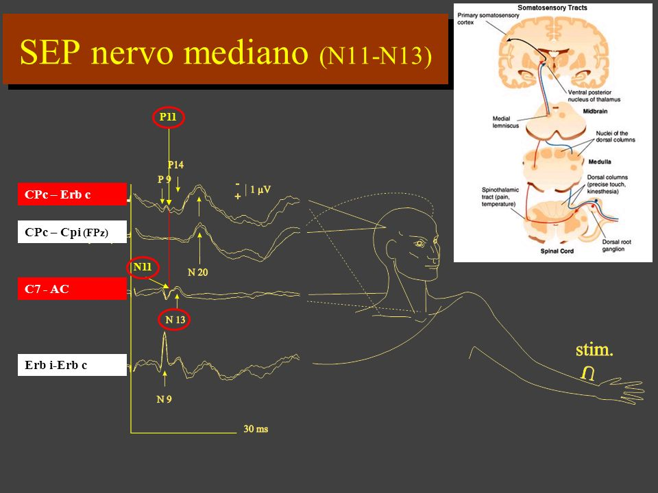 SEP nervo mediano (N11-N13)