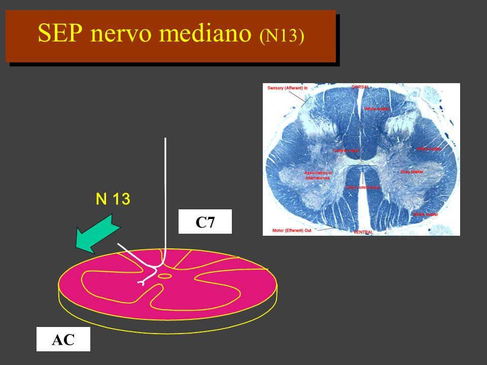 SEP nervo mediano (N13) N 13 C7 AC