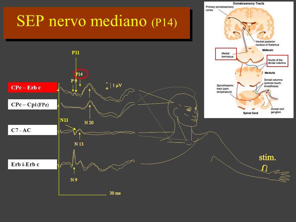 SEP nervo mediano (P14) CPc – Erb c CPc – Cpi (FPz) C7 - AC