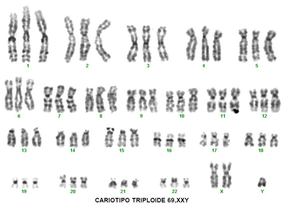 CARIOTIPO TRIPLOIDE 69,XXY