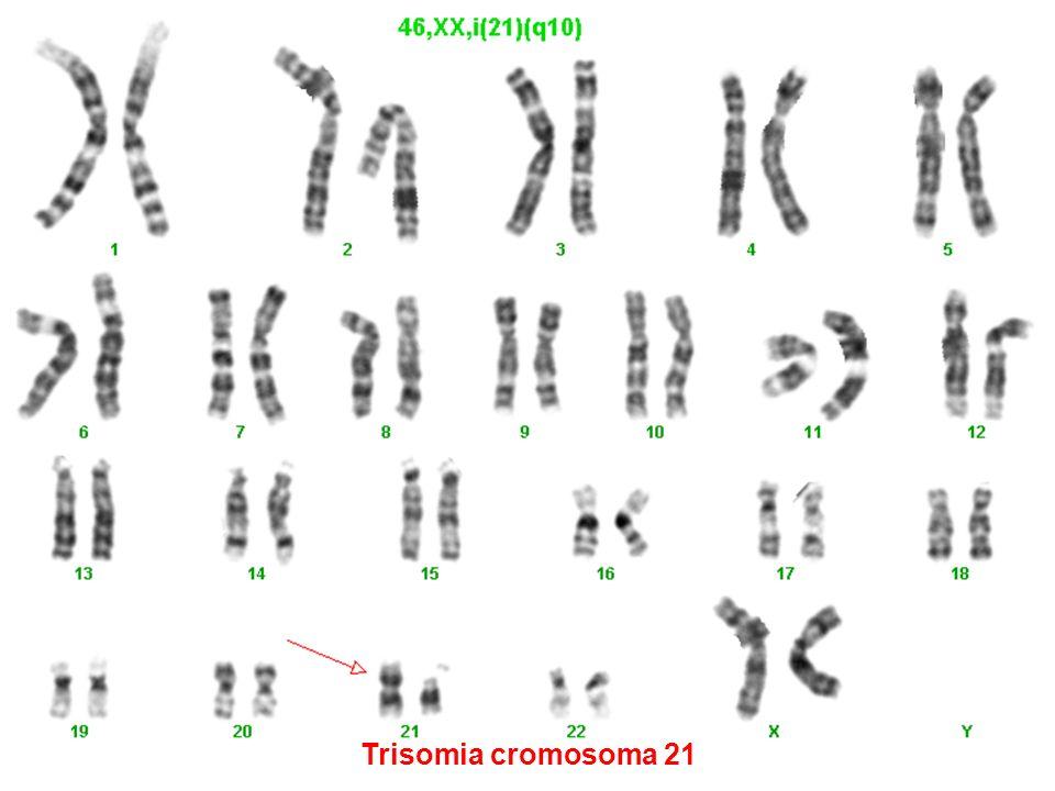 Trisomia cromosoma 21