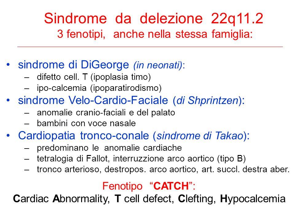 Sindrome da delezione 22q11.2