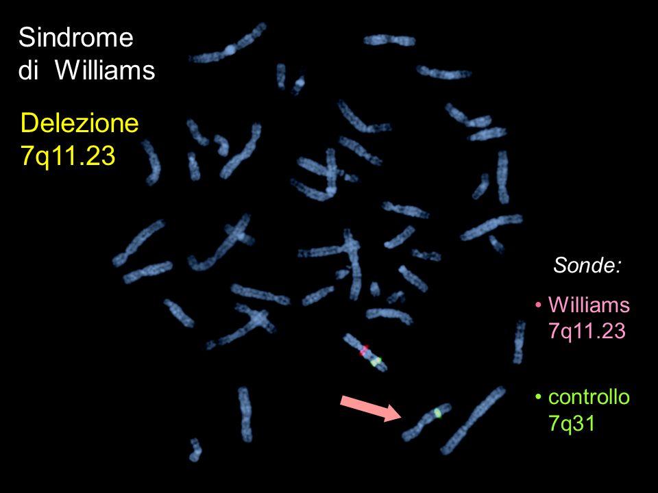 Sindrome di Williams Delezione 7q11.23 Sonde: Williams 7q11.23