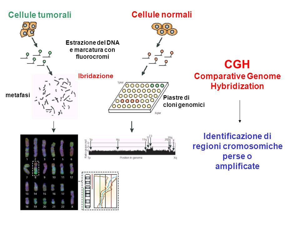 CGH Cellule tumorali Cellule normali Comparative Genome Hybridization