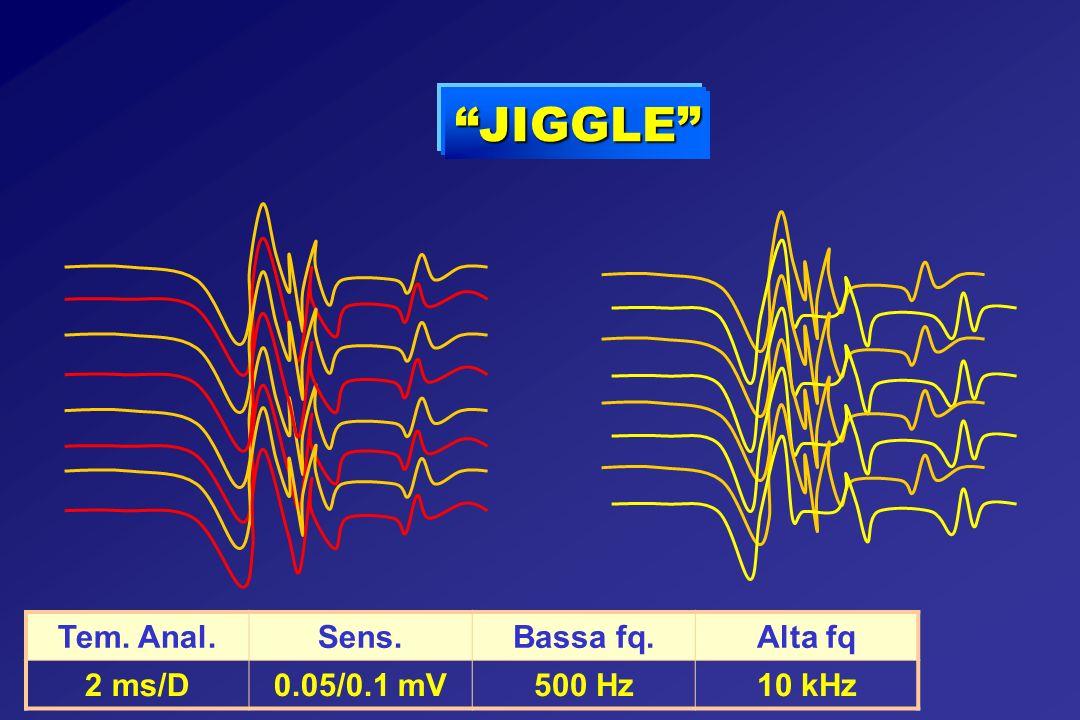 JIGGLE Tem. Anal. Sens. Bassa fq. Alta fq 2 ms/D 0.05/0.1 mV 500 Hz