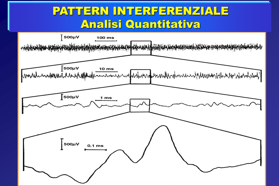 PATTERN INTERFERENZIALE