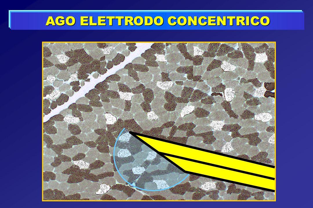 AGO ELETTRODO CONCENTRICO