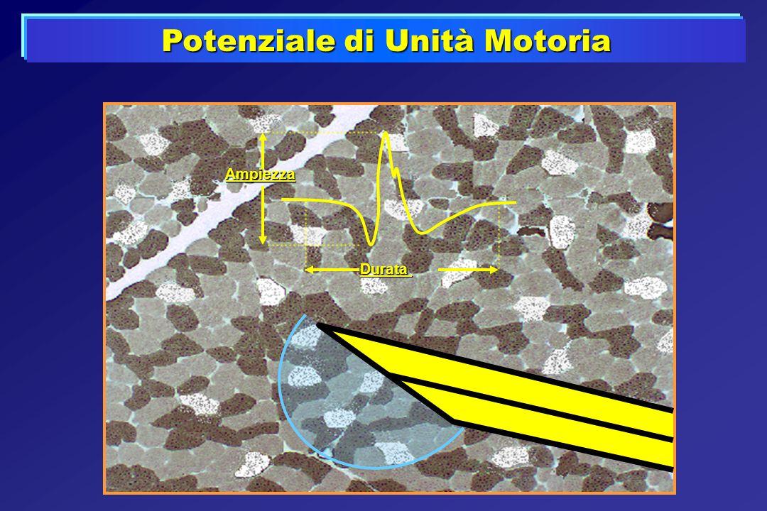 Potenziale di Unità Motoria