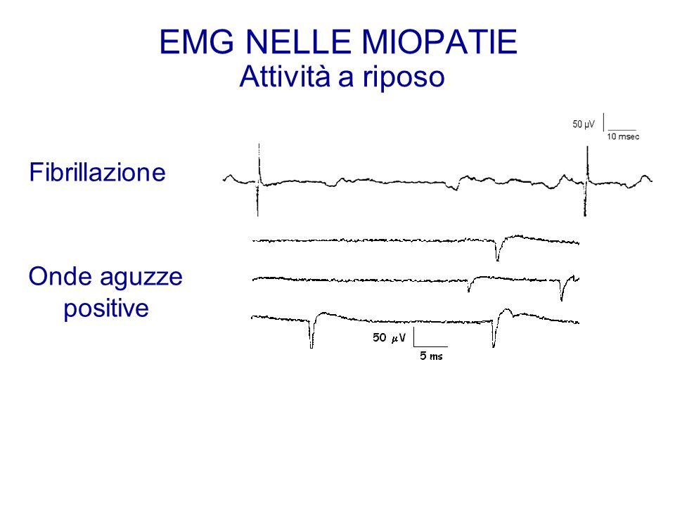 EMG NELLE MIOPATIE Attività a riposo