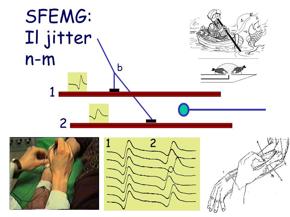 SFEMG: Il jitter n-m b 1 2 1 2