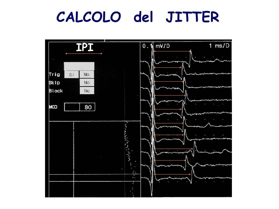 CALCOLO del JITTER IPI