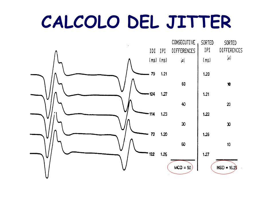 CALCOLO DEL JITTER