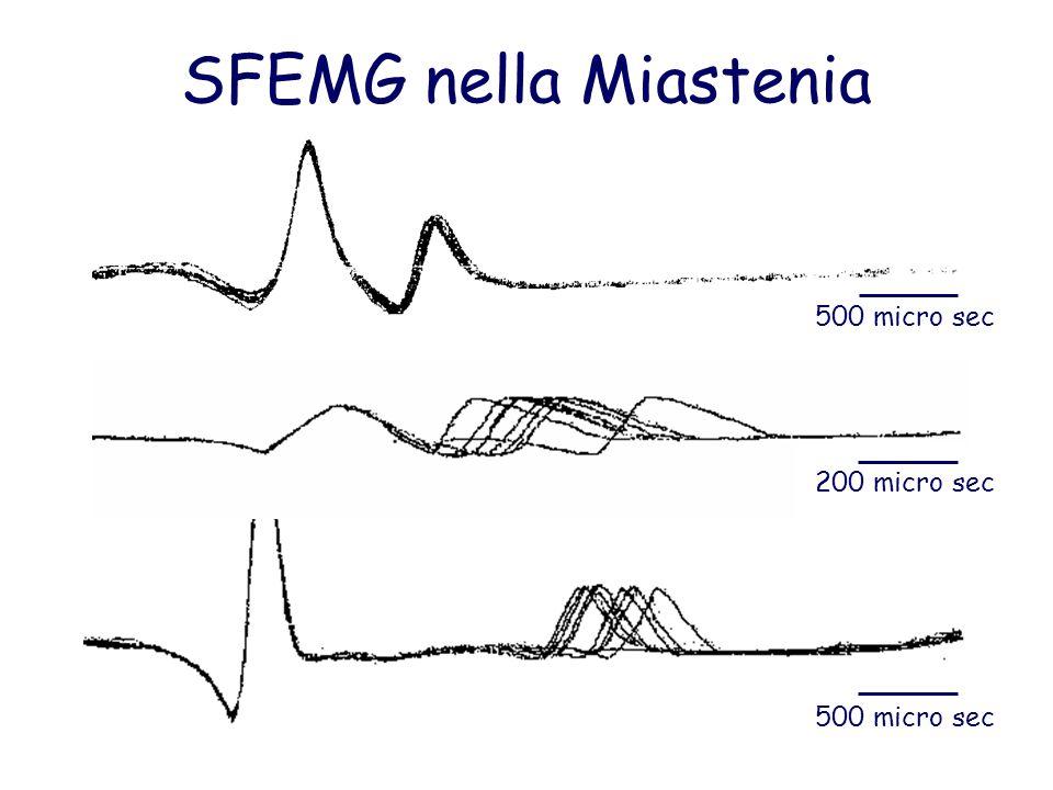 SFEMG nella Miastenia 500 micro sec 200 micro sec 500 micro sec