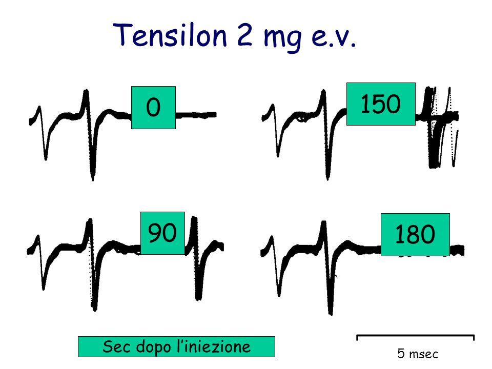Tensilon 2 mg e.v. 150 90 180 5 msec Sec dopo l'iniezione