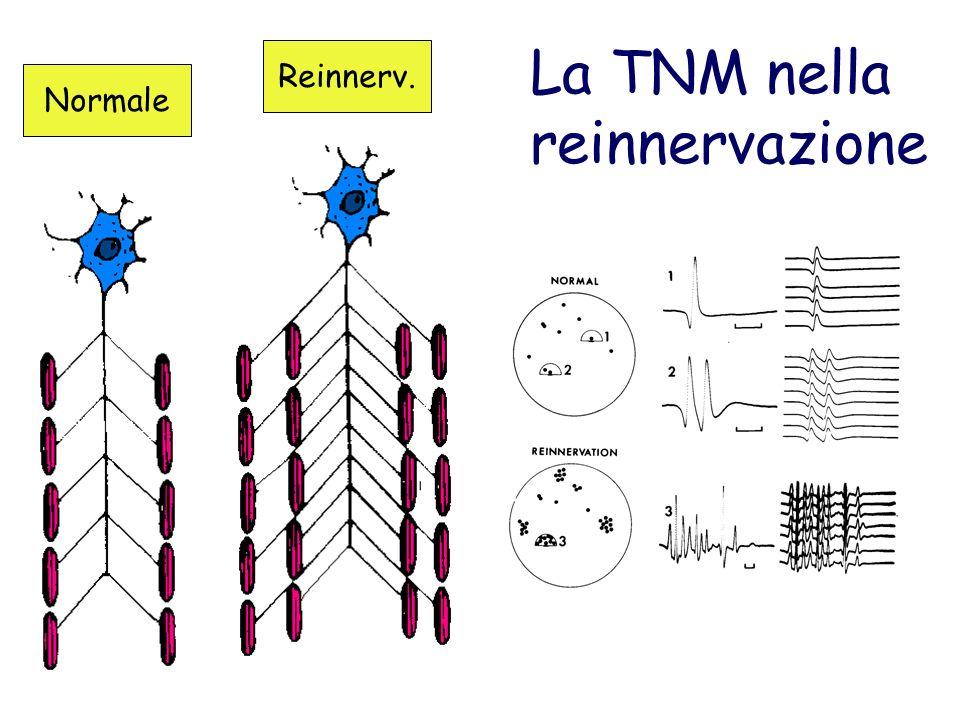 La TNM nella reinnervazione