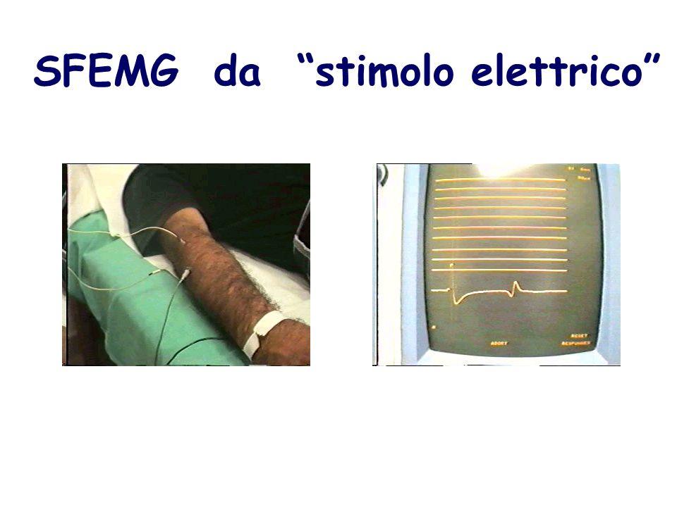 SFEMG da stimolo elettrico