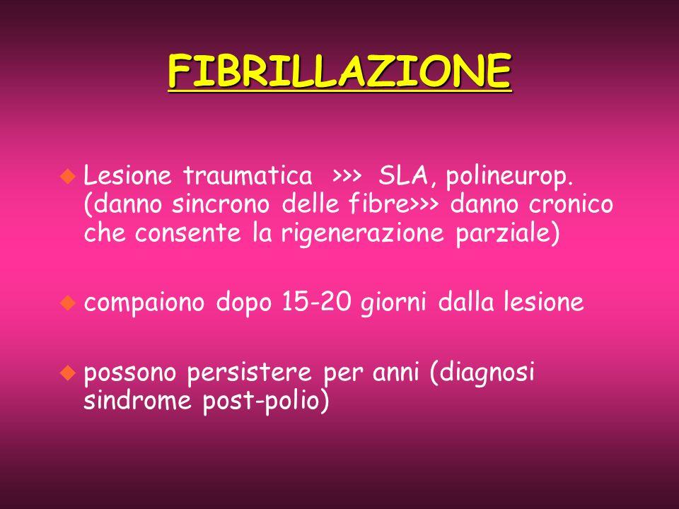 FIBRILLAZIONE