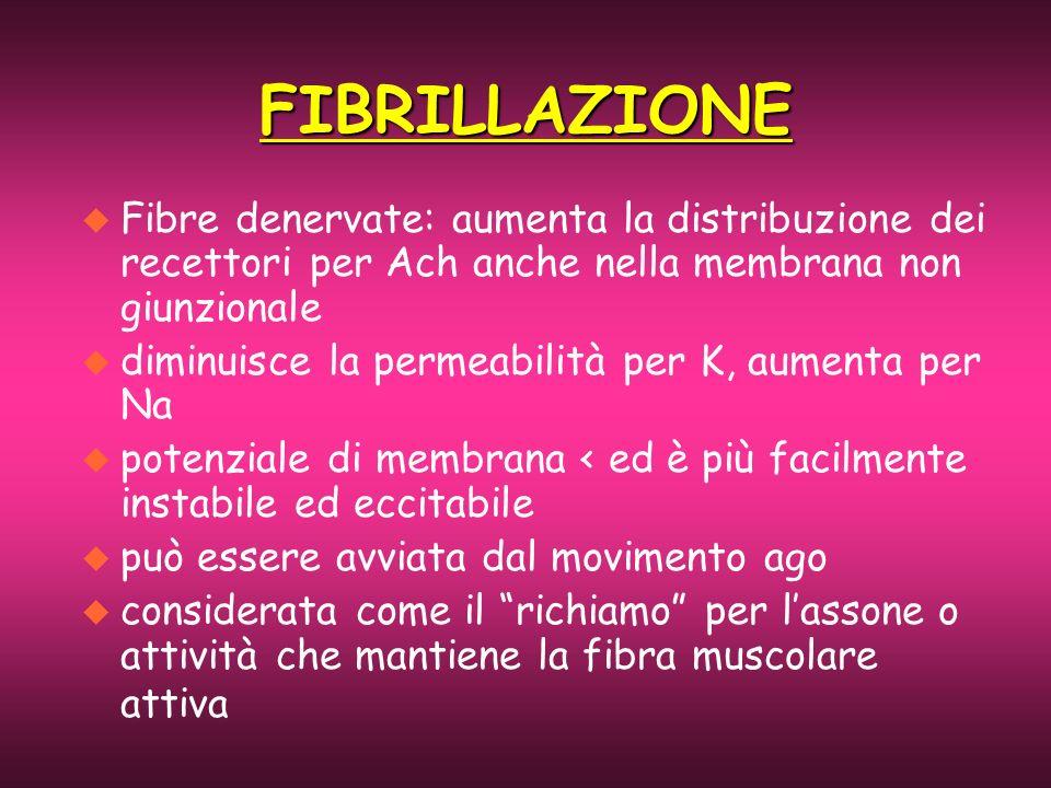 FIBRILLAZIONE Fibre denervate: aumenta la distribuzione dei recettori per Ach anche nella membrana non giunzionale.