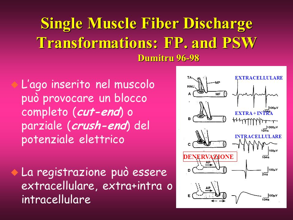 Single Muscle Fiber Discharge Transformations: FP