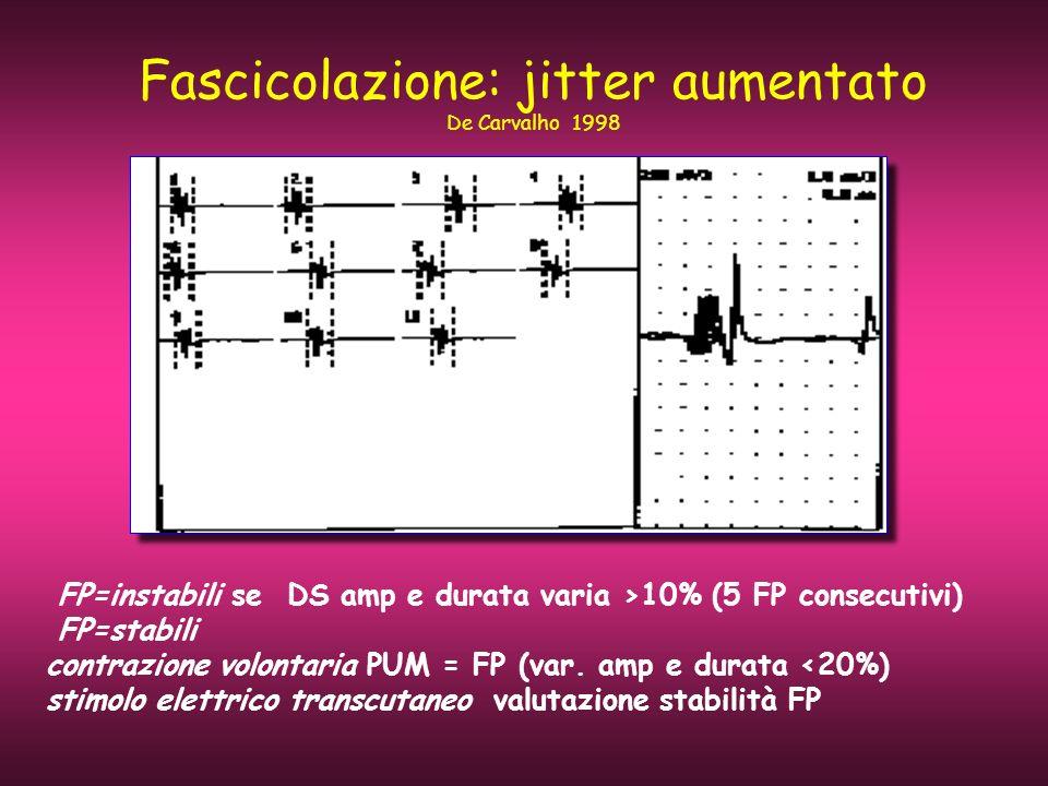 Fascicolazione: jitter aumentato De Carvalho 1998