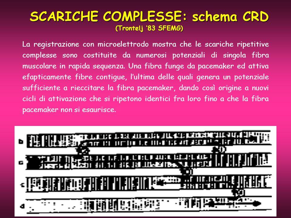 SCARICHE COMPLESSE: schema CRD