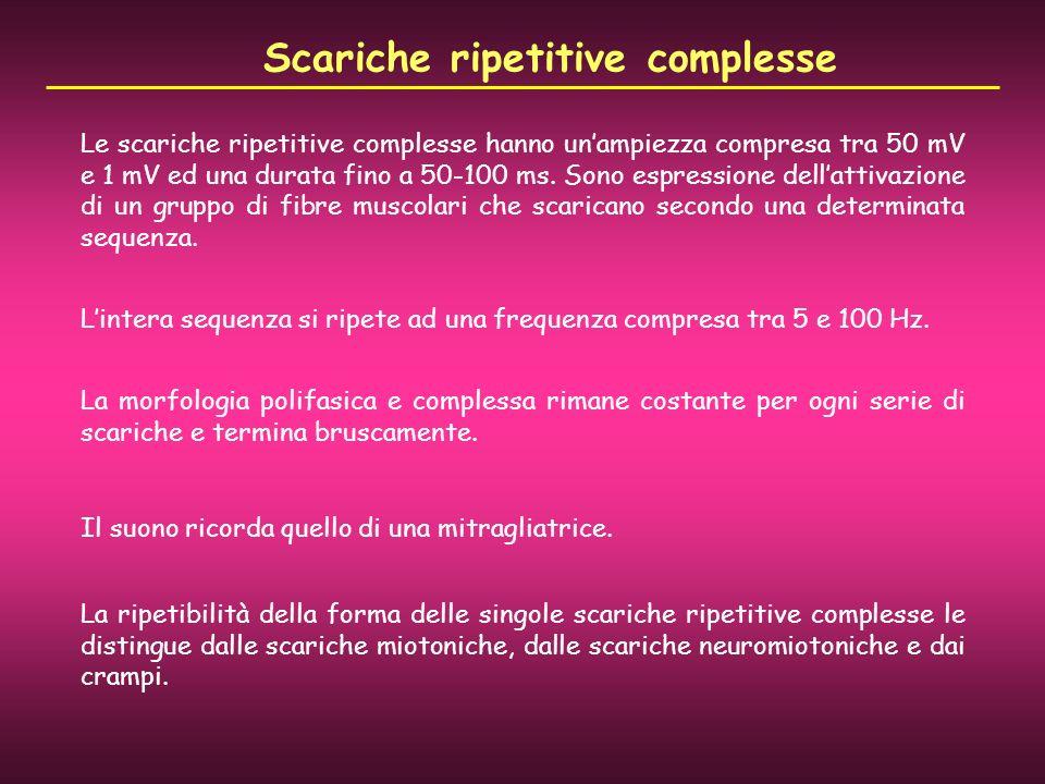 Scariche ripetitive complesse