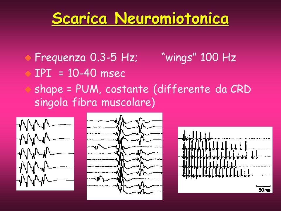 Scarica Neuromiotonica