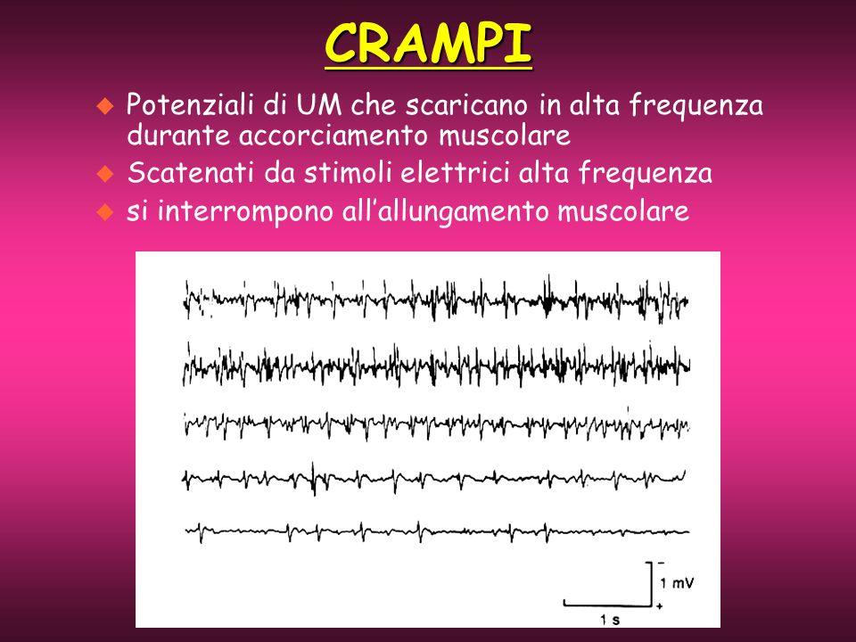 CRAMPI Potenziali di UM che scaricano in alta frequenza durante accorciamento muscolare. Scatenati da stimoli elettrici alta frequenza.