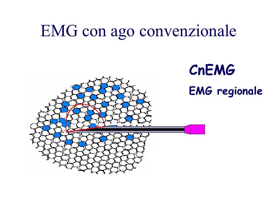 EMG con ago convenzionale