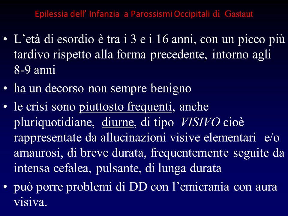 Epilessia dell' Infanzia a Parossismi Occipitali di Gastaut