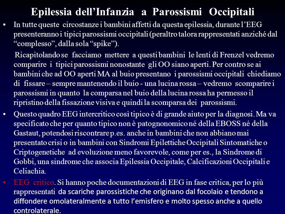 Epilessia dell'Infanzia a Parossismi Occipitali
