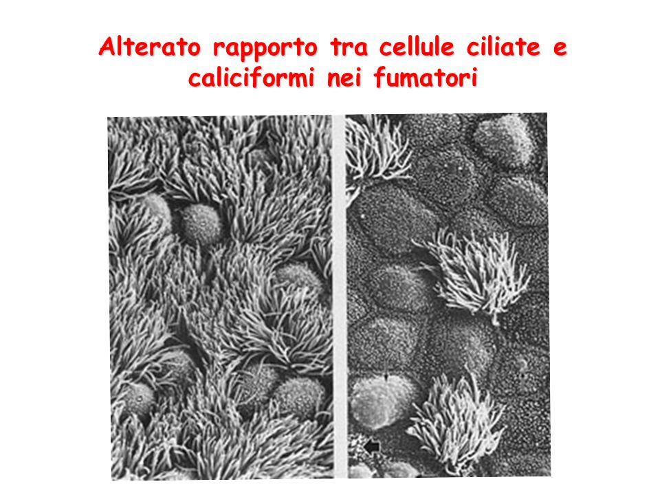 Alterato rapporto tra cellule ciliate e caliciformi nei fumatori
