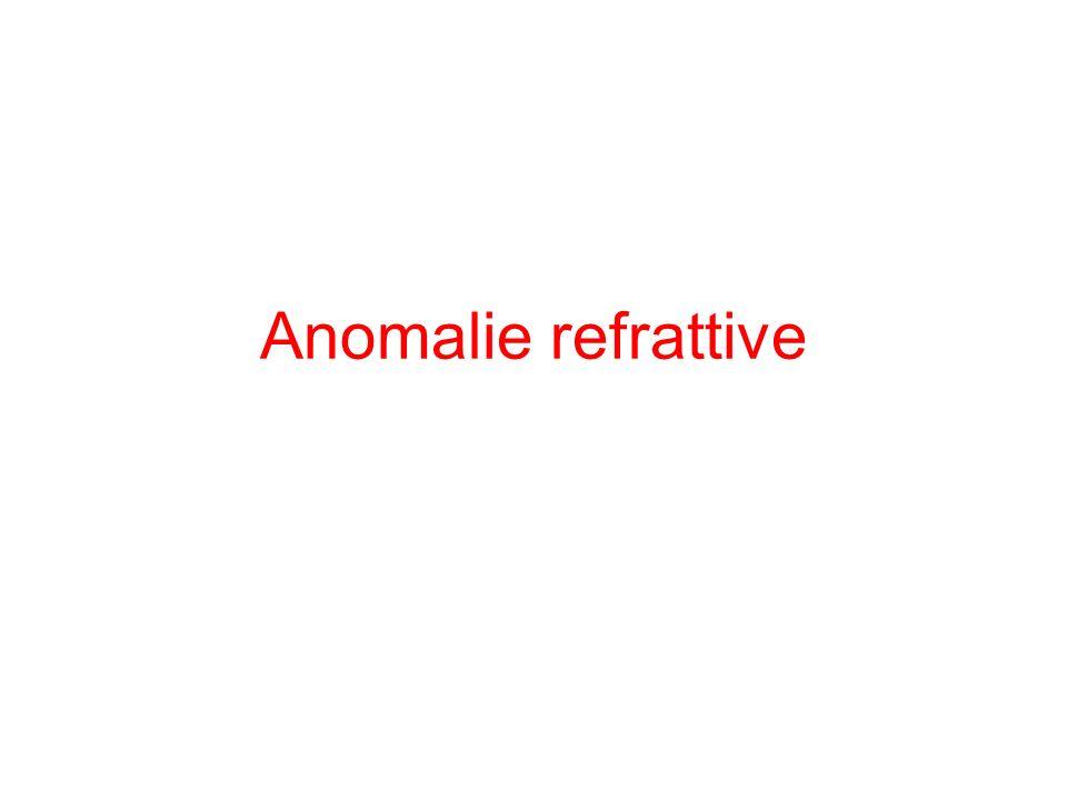 Anomalie refrattive