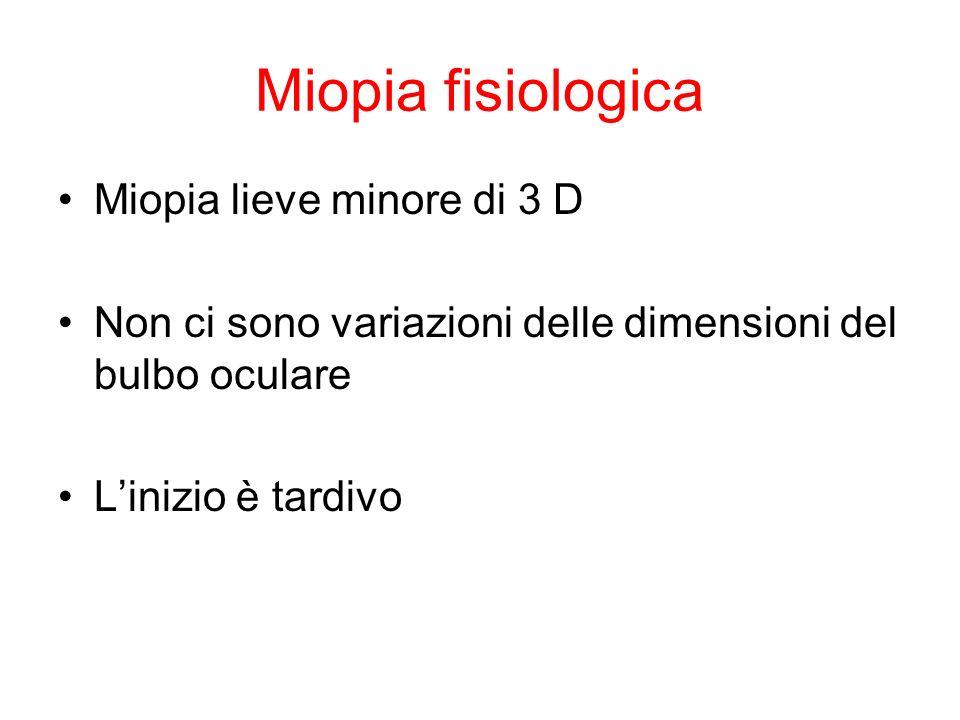 Miopia fisiologica Miopia lieve minore di 3 D