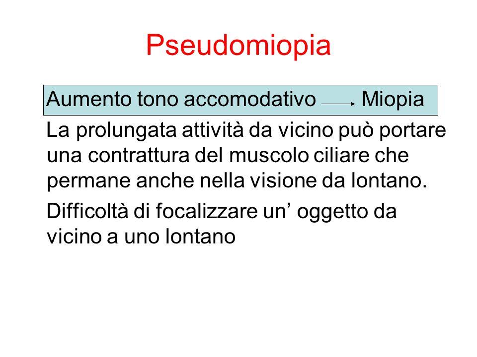 Pseudomiopia Aumento tono accomodativo Miopia