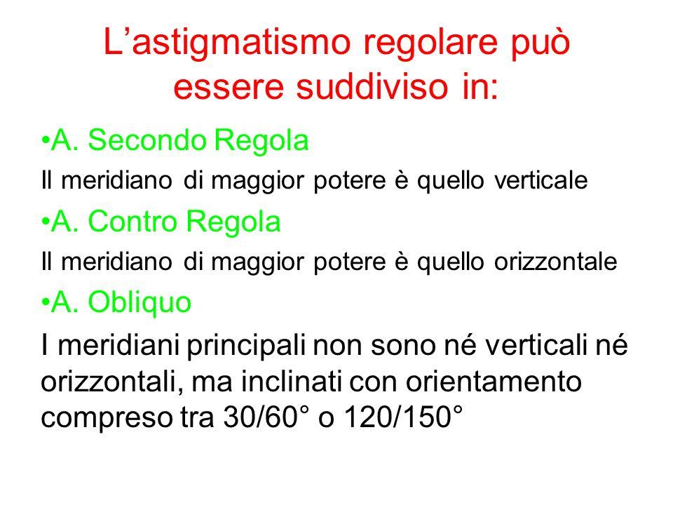 L'astigmatismo regolare può essere suddiviso in: