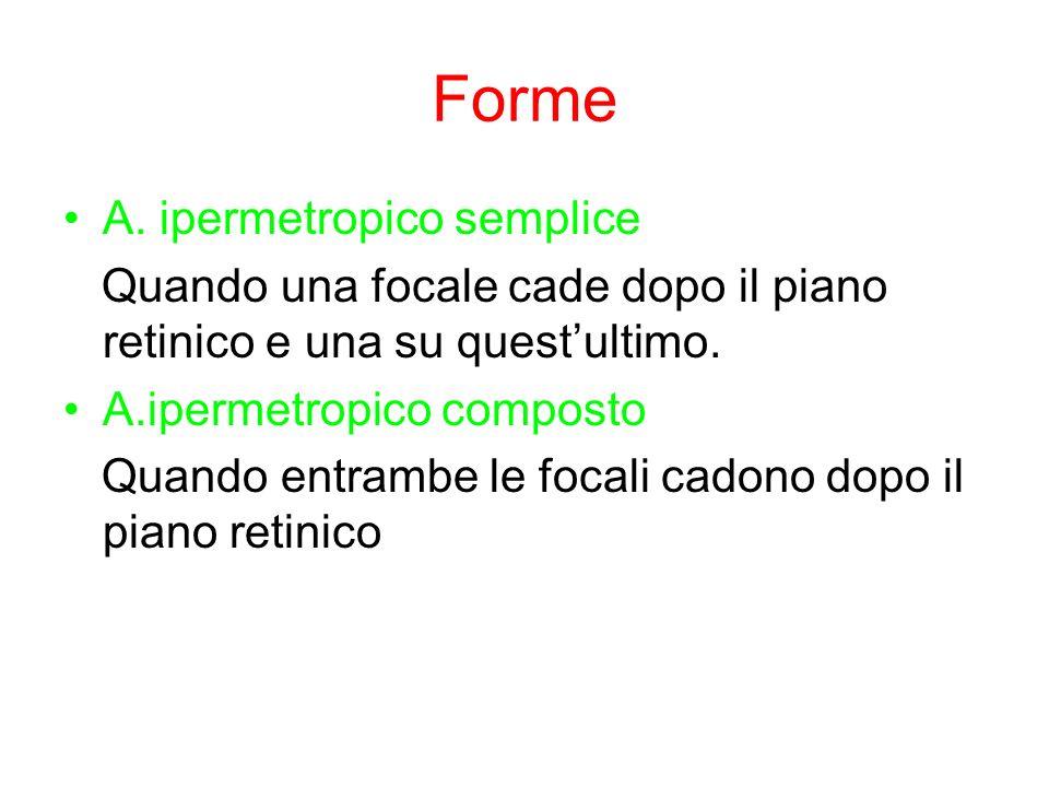 Forme A. ipermetropico semplice