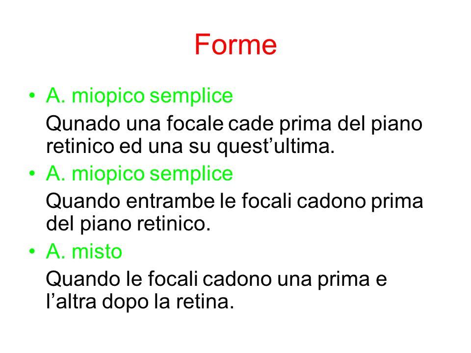 Forme A. miopico semplice